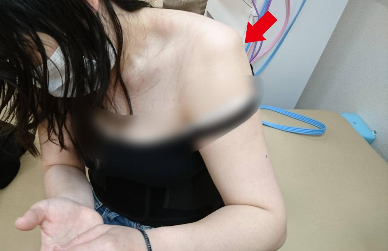 脱臼 痛み 肩